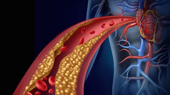 colesterolo sangue