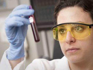 transaminasi alte analisi sangue